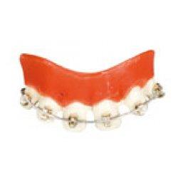 Αποκριάτικα Αστεία Δόντια, με Σιδεράκια